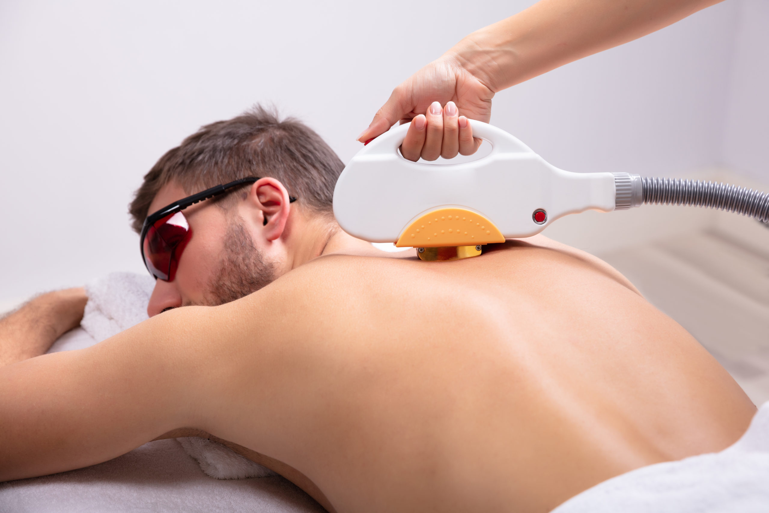 Laser Hair Removal - Back & Shoulders